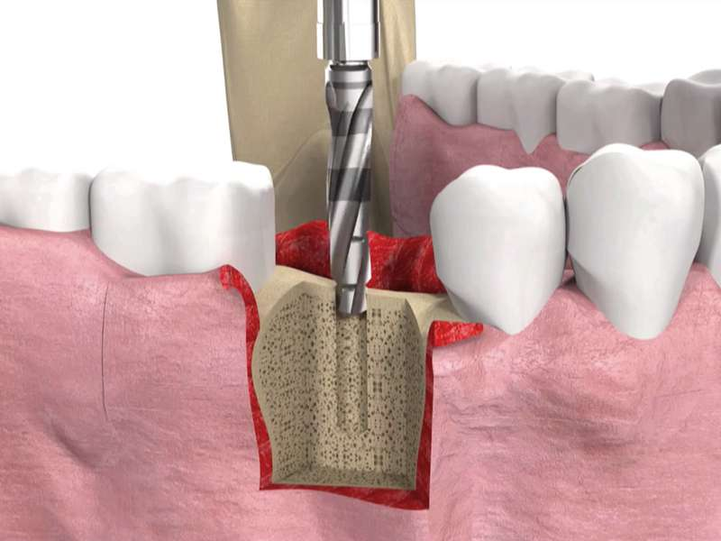 How long does implant treatment last?
