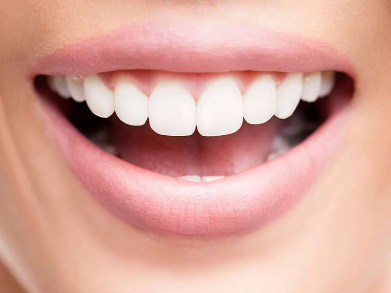 How often is the whitening process carried out?