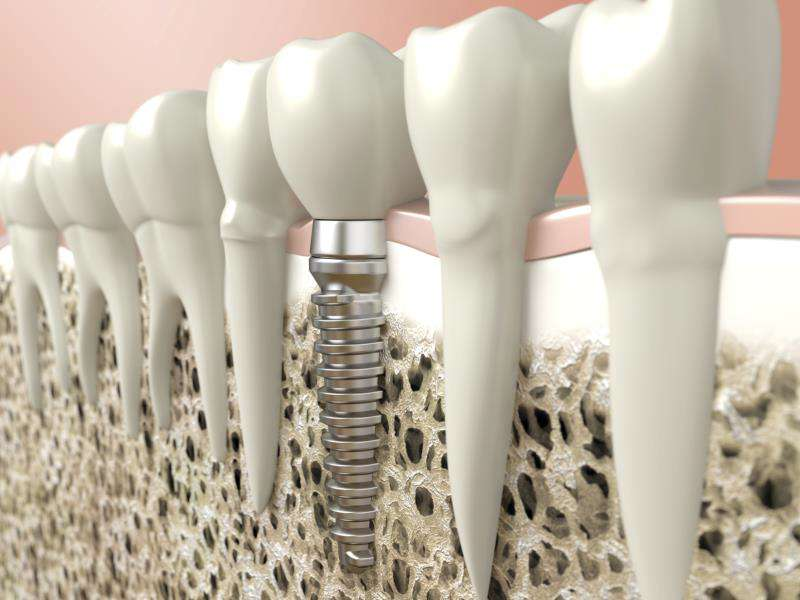 Is the implant treatment safe?