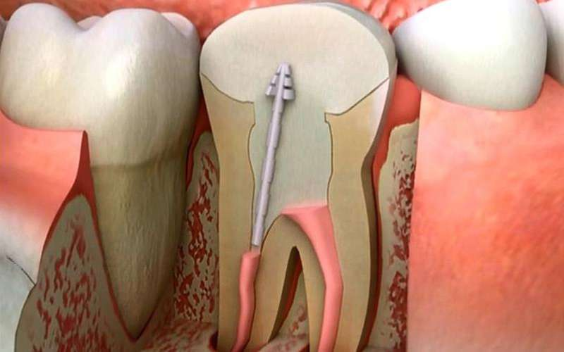 Is root canal treatment a long-lasting treatment?